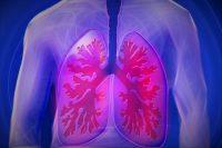 Zatürre (Pnömoni) Hastalığı Nedir ve Nasıl Korunmak Gerekir?