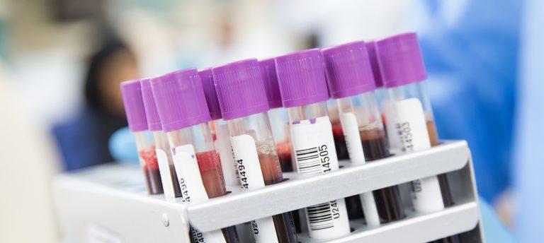 Trabzon Özel Hastaneleri Laboratuvar Sonuçları